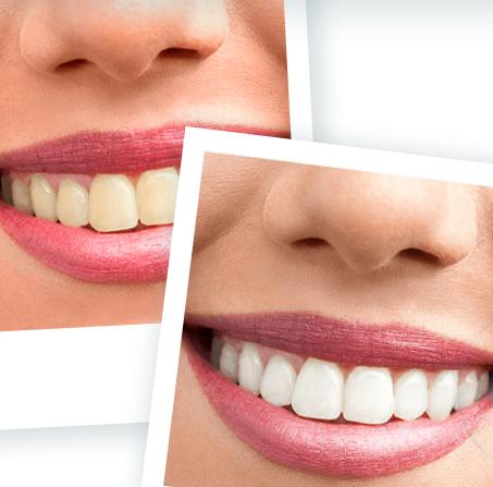 Ident Formula - การฟอกสีฟัน – พัน ทิป – หา ซื้อ ได้ ที่ไหน – lazada
